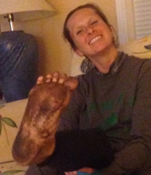 Despite 17 hours of grime, Ashleys feet were blister free!