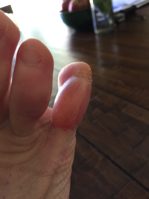 Only minor blister post 100 miles. This toe was taped!